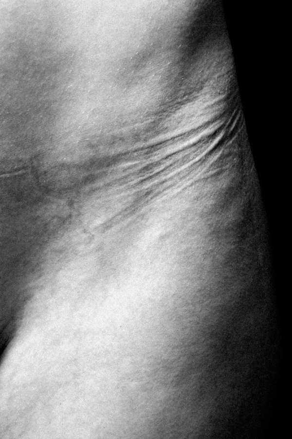 Powerful Images Show Actual Imprints Left On Skin From What Women Wear