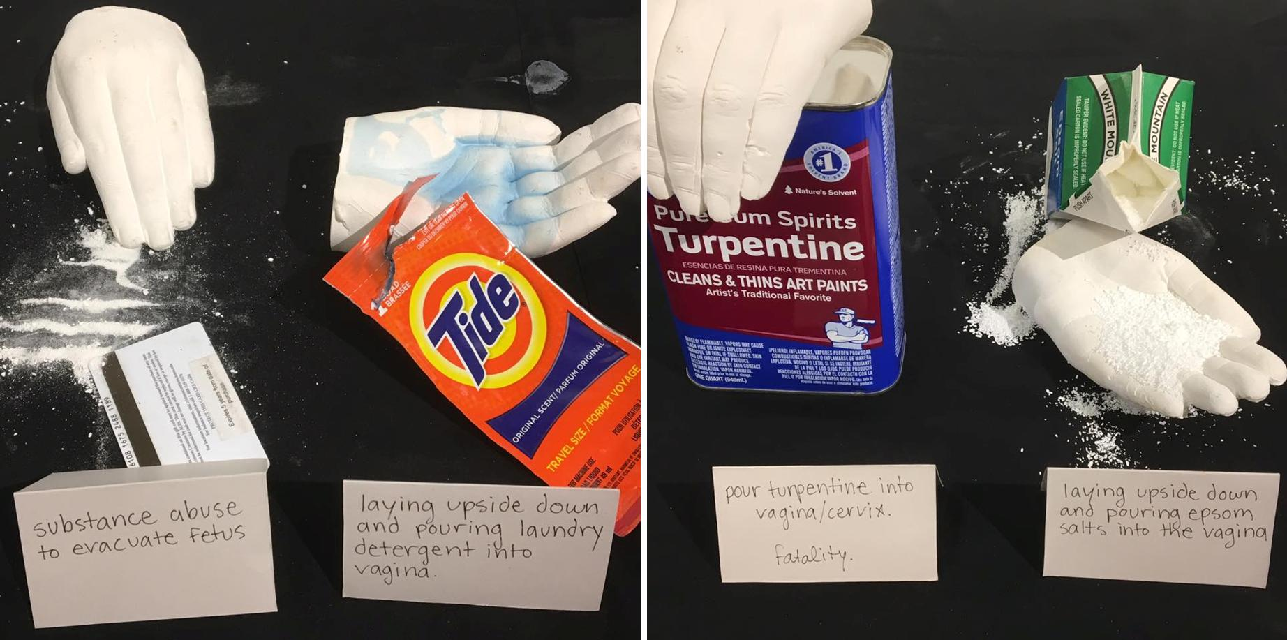 abortion method tide